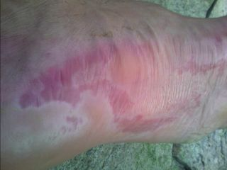 Long distance hiking foot issues!